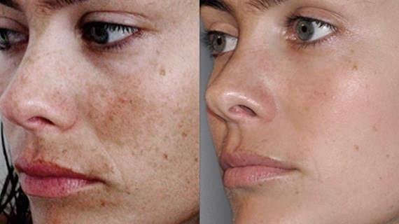 peeling-quimico-superficial-resultados