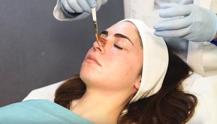 peeling-quimico-facial
