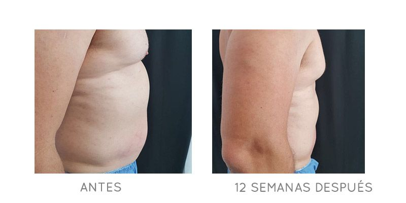 abdomen-before-after-02