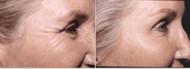tratamiento-arrugas-cara-botox-02